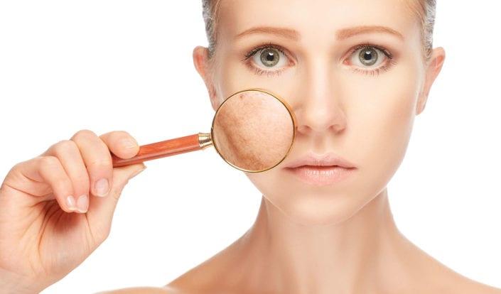 Szabaduljon meg bőrproblémáitól étrendváltással!